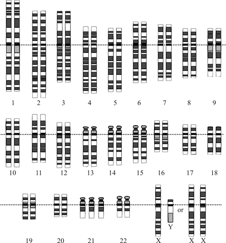 trisomy 21 in humans